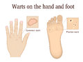 Warts on the hand and foot