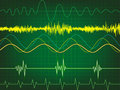 Waveform in green background Stock Image