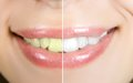 Whitening woman teeth before and after Stock Photo