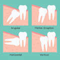 Wisdom tooth four types of vector Royalty Free Stock Photos