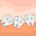 Wisdom tooth illustration vector of an impacted Stock Photo