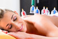 Woman in alternative medical cupping therapy with cups being applied on her back Stock Image