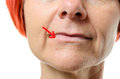 Woman with blemish on chin close up view face of middle aged pointing to surrounded by one red arrow over white background Royalty Free Stock Photos