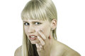 Woman face acne young examines or skin blemish with stress expression Royalty Free Stock Image