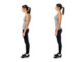 Woman with impaired posture position defect scoliosis and ideal bearing Royalty Free Stock Images