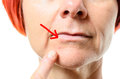 Woman pointing to blemish on chin close up view face of middle aged surrounded by one red arrow over white background Stock Images