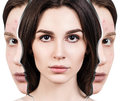 Woman rebirth from bad acne skin to perfect. Royalty Free Stock Photo