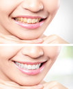 Woman teeth before and after whitening asian beauty model Stock Photography