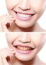Woman teeth before and after whitening asian beauty model Stock Image