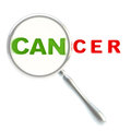 Word cancer under the magnifier isolated Stock Photo