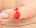 Wound with blood Royalty Free Stock Photo