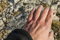 Wounded his hand on the stones of while hiking in mountains Royalty Free Stock Images