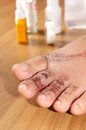 Wounds on women foot closeup Royalty Free Stock Photos