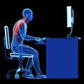 Wrong sitting posture d rendered medical illustration Stock Image