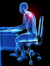 Wrong sitting posture d rendered medical illustration Royalty Free Stock Photo