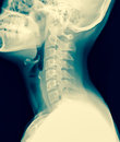 x-ray of the cervical spine / Many others X-ray images in my portfolio. Royalty Free Stock Photo
