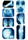 X-ray collection Royalty Free Stock Photography