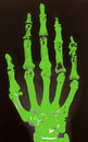 X-ray of hand Stock Photos