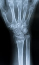 X-Ray of the hand Royalty Free Stock Photo