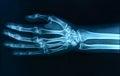 X-ray hand Royalty Free Stock Photo