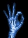 X-ray hand with OK symbol Royalty Free Stock Photo