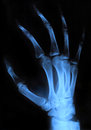 X ray hand scan of human xray image medical background Stock Image