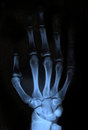 X ray hand scan of human xray image medical background Stock Photo
