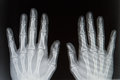 X ray from hands human Royalty Free Stock Photography