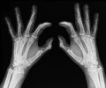 X ray of hands rays an adult man with visible damage Stock Photo