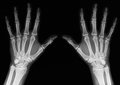 X ray of hands rays an adult man with visible damage Royalty Free Stock Photo