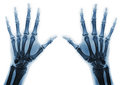 X ray hands rays of of an adult man with visible damage Royalty Free Stock Image