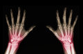 X ray of hands rays an adult man with visible damage Stock Image