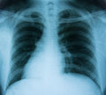 X-Ray Of Human Chest Stock Photo