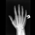 X-ray  of human hand Stock Images