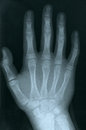 X ray of a human hand vertical picture Stock Photo