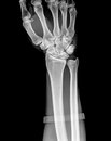 X ray of human hand and wrist Royalty Free Stock Photography