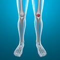 X ray of human legs knee body and skeleton with pain Stock Photo