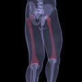 X ray of human legs render on a black background Royalty Free Stock Images