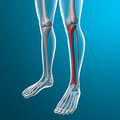 X ray of human legs tibia bone body and skeleton with pain in leg Stock Image