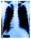 X-Ray Image Of Human Chest Royalty Free Stock Images