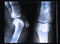 X ray image if human knee Stock Photography