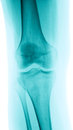 X-Ray image of a knee Royalty Free Stock Photo