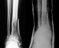 X-ray image of lower leg Royalty Free Stock Photo