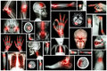 X-ray multiple part of human with multiple disease (stroke, arthritis, gout, rheumatoid, brain tumor, osteoarthritis, etc) Royalty Free Stock Photo