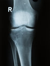 X ray photo of a human knee photograph or roentgen image with tibia femur fubula and patella Royalty Free Stock Photography