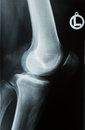 X ray photo of a human knee photograph or roentgen image with tibia femur fubula and patella Stock Photo
