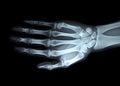X-ray right hand Royalty Free Stock Photo
