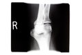 X ray  Right Knee Royalty Free Stock Photo