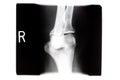 X ray  Right Knee Royalty Free Stock Photo