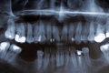 X ray scan of humans teeth panoramic image Royalty Free Stock Images